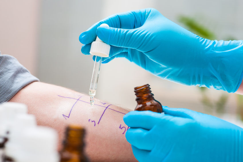 36008621 - skin prick allergy test to find out kind of allergy